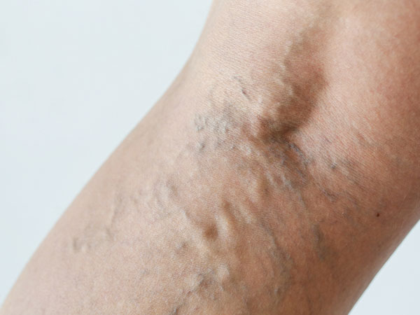 home remedy for varicose veins