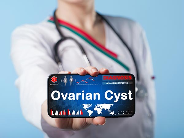 Natural Remedies For Ovarian Cysts