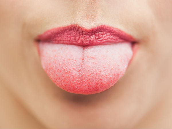Surprising Secrets Your Tongue Can Reveal About Your Health