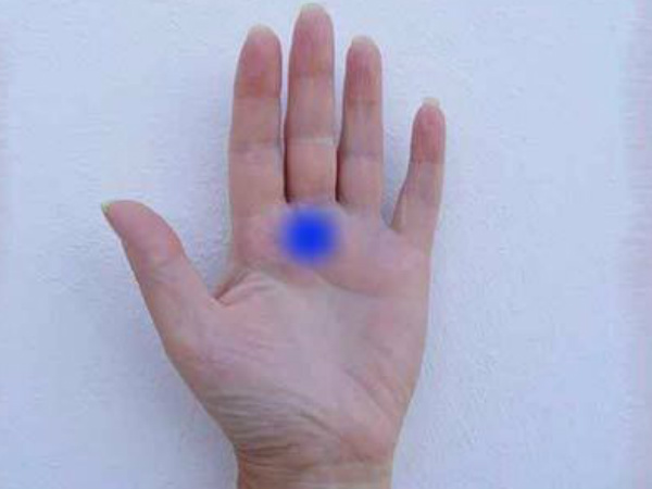 Palmistry Significance Of Star On A Palm