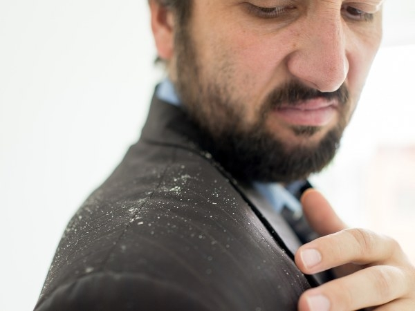 Home Remedies To Get Of Dandruff Naturally