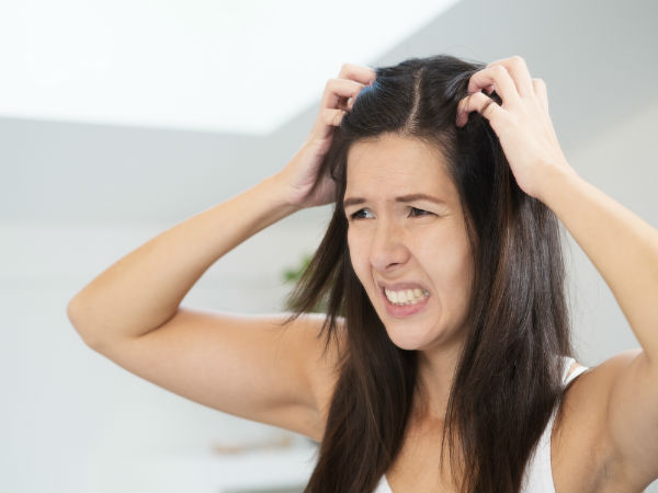 How To Get Rid Of Head Lice Permanently