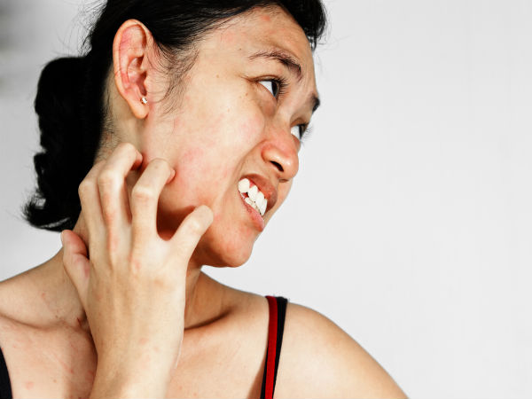 Best Remedies For Itching
