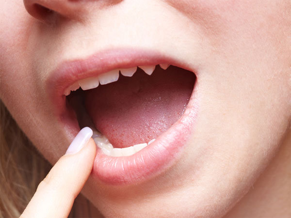 Home Remedies To Strengthen Loose Teeth In Bengali