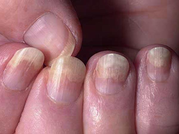 COVID nails : কোভিড থেকে সুস্থ হওয়ার পর নখে এই পরিবর্তনগুলি দেখা দিচ্ছে? জানুন এই গুরুতর সমস্যা সম্পর্কে