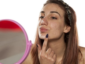 How To Actually Get Rid Of Pimples