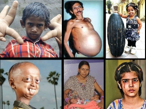 Strange Medical Cases Reported In India