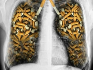 Simple Ways Smokers Can Purify Their Lungs