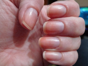 Colour Of Your Nails Say A Lot About Your Health