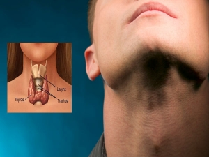 Foods To Avoid With Hyperthyroidism