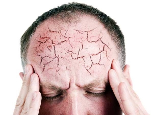 Do You Know The Reason Behind Your Headache