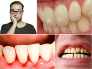 Best Home Remedies To Cure Swollen Gums Naturally