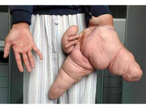 Unbelievable Genetic Accidents That Will Shock You