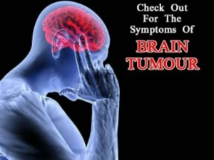 Common Symptoms Of Brain Tumour You Need To Know World Brain Tumour