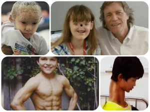 Shocking Special Kids Who Exist