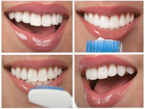 Thirteen Home Remedies For Teeth Shaking