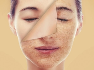 Amazing Benefits Of Neem Oil Ways Use It Skin Hair