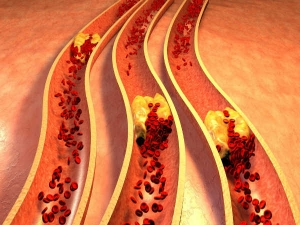 Home Remedy For Cholesterol Cilantro