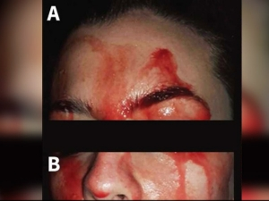 Doctors Stunned By Rare Case Of Italian Woman Who Sweats Blood