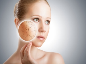 Xerosis Cutis Causes Symptoms And Treatments