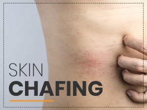 Chafing Causes Symptoms Treatment And Prevention