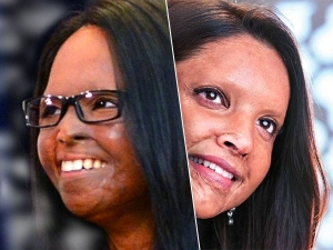 Laxmi Agarwal Know About The Acid Attack Survivor