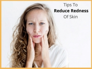 How To Reduce Redness Of Skin During Winters