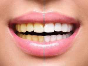 Home Remedies For Removing Tobacco Stains From Teeth