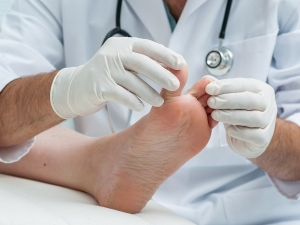 Tips On How To Prevent Diabetic Foot Ulcers
