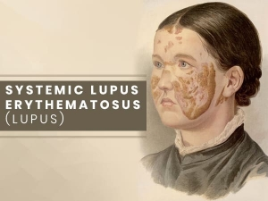 Systemic Lupus Erythematosus Causes Symptoms Treatments And Prevention