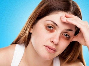Use These Home Remedies To Get Rid Of Dark Circles
