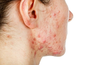Effective Home Remedies For Cystic Acne