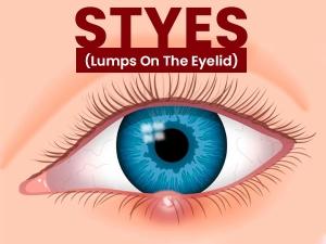 Effective Home Remedies For Eye Stye