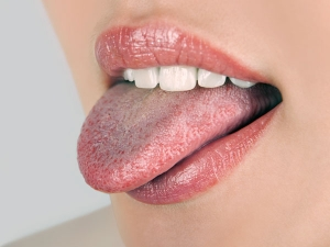 Home Remedies To Get Rid Of Black Spots On The Tongue