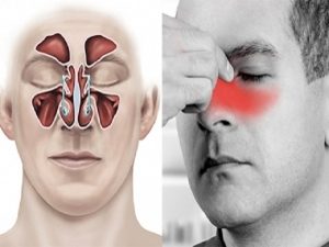Effective Home Remedies To Relieve Sinus Pain