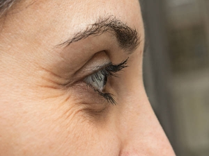 Best Home Remedies For Wrinkles Around Eyes