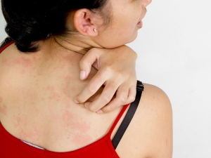 Natural Home Remedies For Prickly Heat