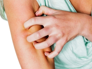 Simple Home Remedies For Fungal Infections