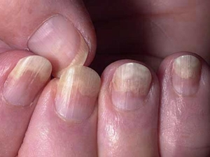 Covid Nails Could Be A Sign That You Have Had Covid Know About It