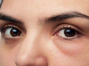 Simple Home Remedies To Get Rid Of Puffy Eyes