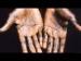 কোভিডের মাঝেই নয়া আতঙ্ক 'মাঙ্কিপক্স', কী এই রোগ? জেনে নিন বিস্তারিত